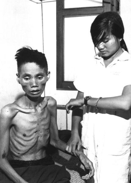 430px-starved_vietnamese_man_1966